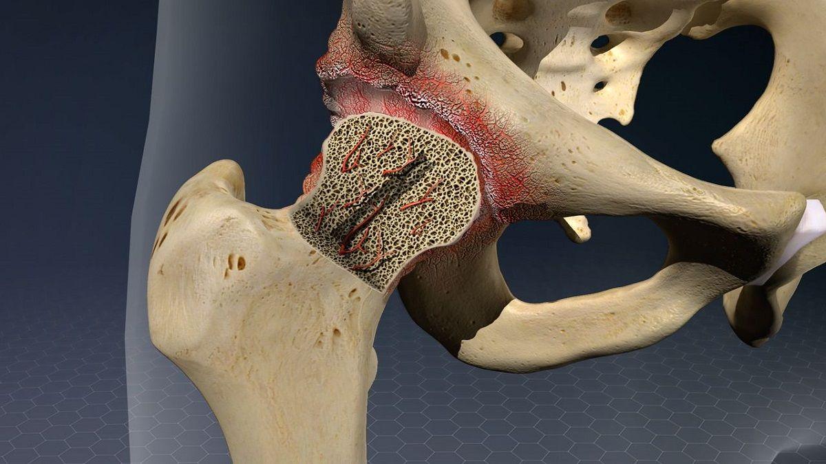 هرآنچه که باید راجع به نکروز استخوان بدانیم