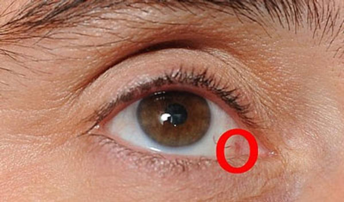 علائم سرطان چشم چیست و روش درمان آن چه می باشد؟