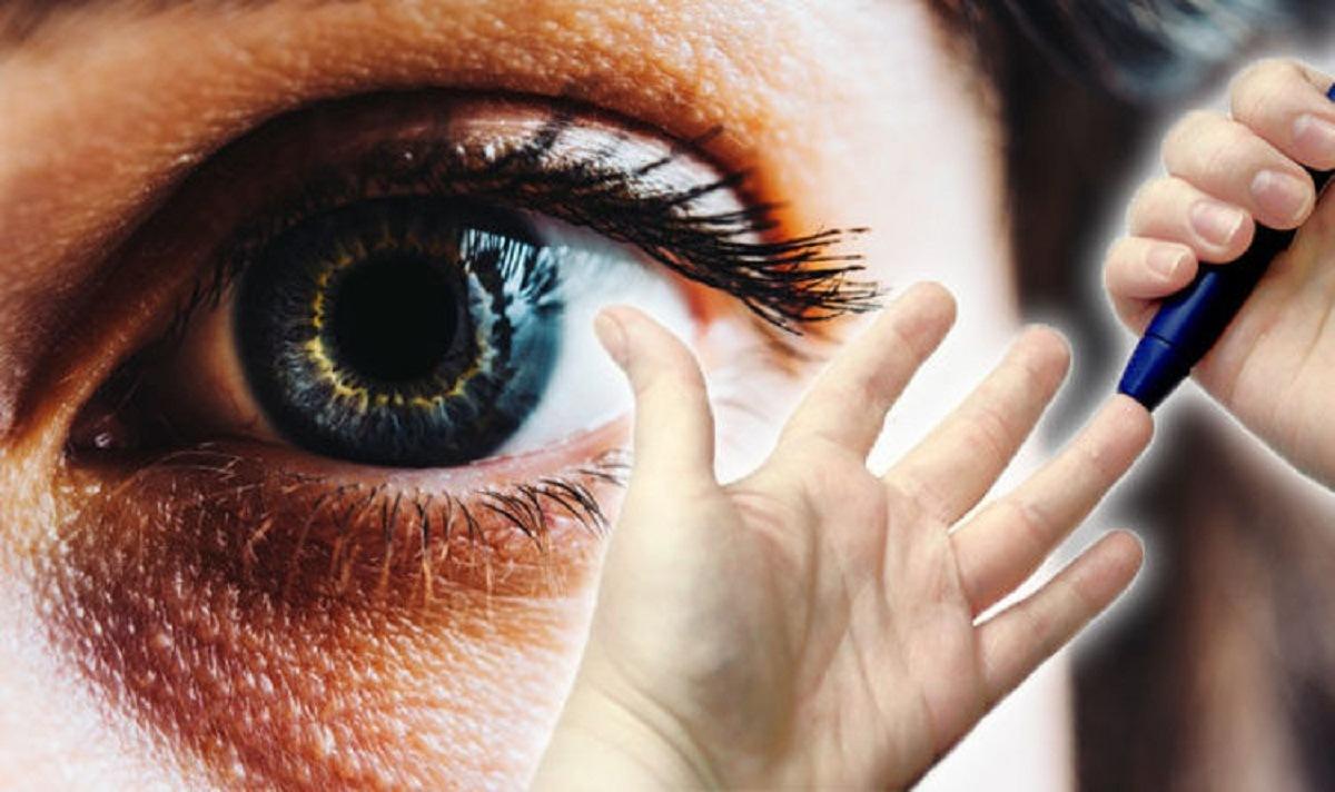 ارتباط دیابت و تاری چشم