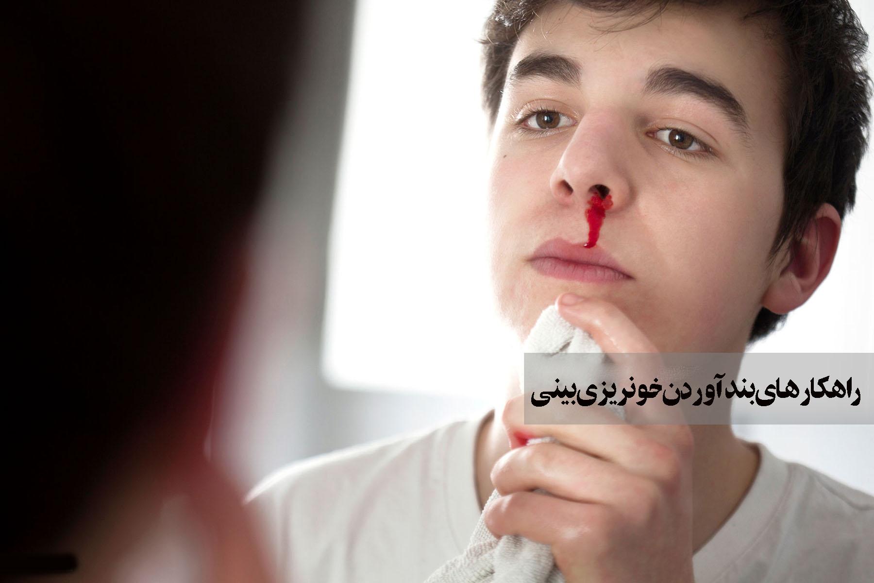 راهکارهای بند آوردن خونریزی بینی (بخش دوم)