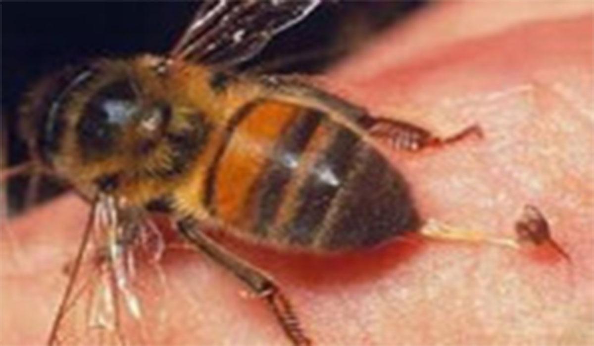 درمان بیماریها با نیش زنبور!