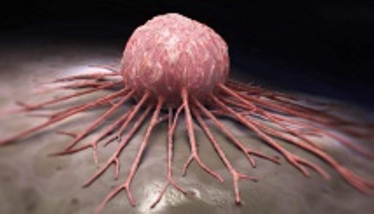 علائم کلی سرطان چیست؟