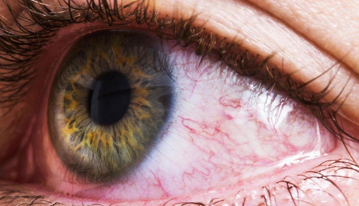 علائم هشدار دهنده مشکلات چشمی