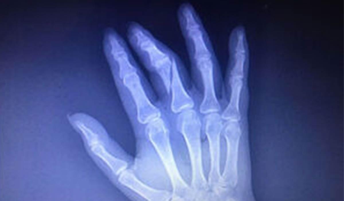 شکسته شدن دست خبرنگار در بیمارستان!