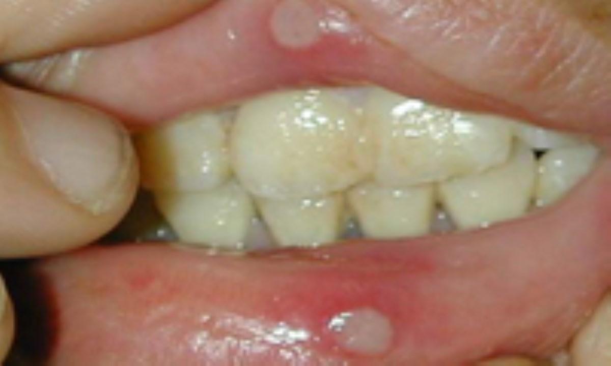 ساخت ژل درمان آفتهای دهانی توسط پژوهشگران ایرانی