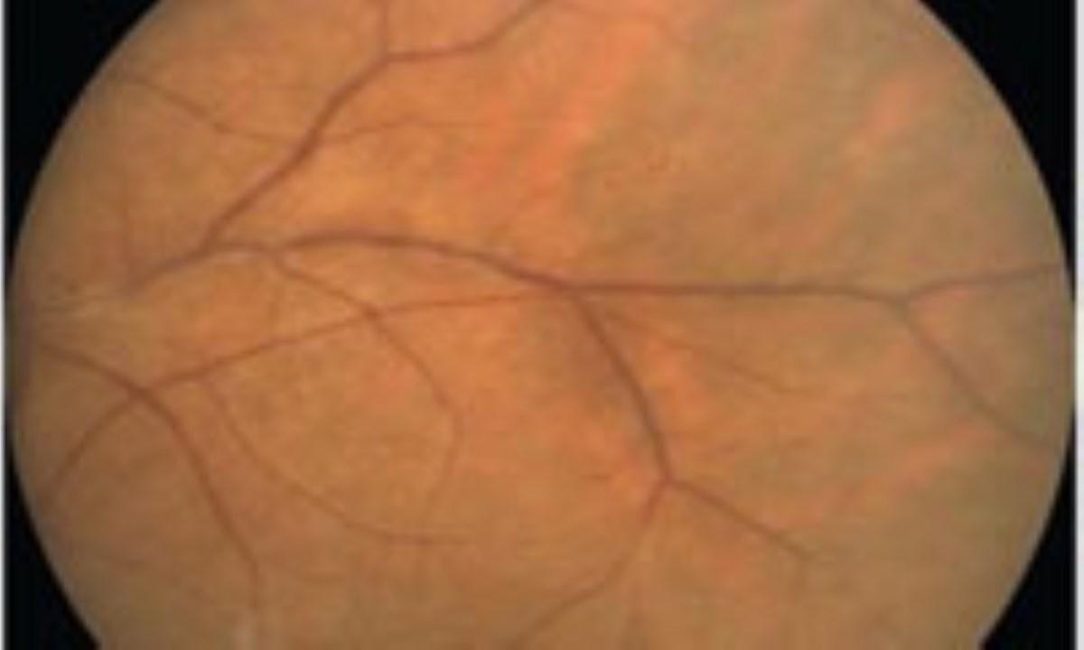 احتمال تشخیص اماس در بیماران مبتلا به بیماری التهابی چشم
