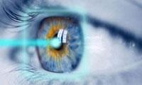 عملية تصحيح النظر.. فوائدها وأضرارها