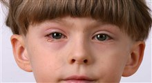 علائم عارضه چشم صورتی در نوزادان و کودکان تازه به راه افتاده چیست؟