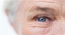 چرا صورتتان زودتر از موعد پیر شده است؟