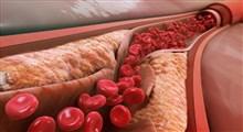 راهکارهای کاهش چربی خون
