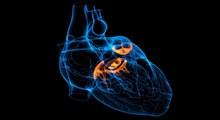 آشنایی با بیماری دریچه های قلب،علل و عوامل خطرآفرین آن