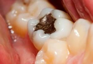 درد دندان را بعد از پر کردن جدی بگیریم یا نه؟