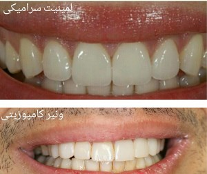 کامپوزیت و لمینت دندان چه تفاوتی دارند؟