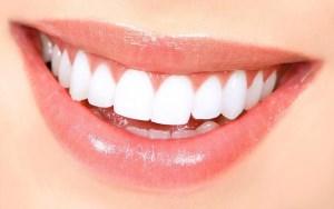 بریج دندان چیست و چگونه انجام می شود؟