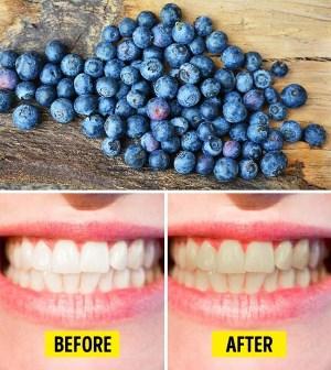 8 خوراکی که به شدت به دندان آسیب می زند؟