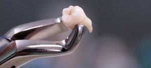 در مورد دندان عقل چه می دانید؟