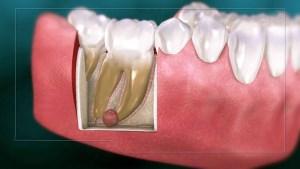 علت کیست دندان چیست؟ و راه درمان آن چه می باشد؟