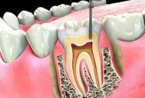 درمان ریشه دندان یا روت کانال تراپی چیست؟