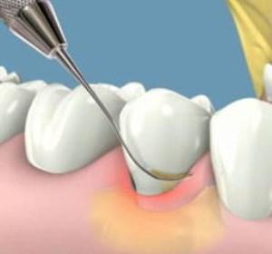 جرم گیری دندان چیست؟آیا جرم گیری به دندان آسیب می زند؟