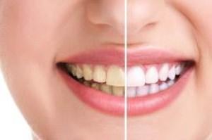 چگونه با روش بلیچینگ می توان دندان را سفید کرد؟