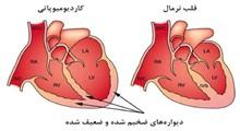 کاردیومیوپاتی یا اختلال التهابی عضله قلب و علائم و درمان آن