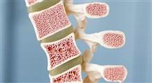 از علت تا درمان سرطان مغز استخوان