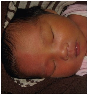 علل تغییر رنگ پوست نوزاد