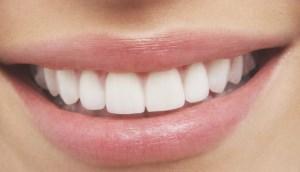 سفید کردن دندان با خوردن ۴ خوراکی طبیعی