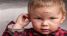 چه زمان به خاطر آسیب دیدگی سر کودک تازه به راه افتاده بایستی به اورژانس مراجعه کنیم؟