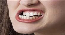 دندان قروچه یا براکسیزم