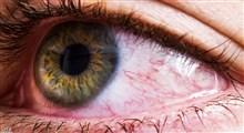 سرطان ملانوم چشمی