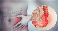 همه چیز راجع به سندروم روده تحریک پذیر