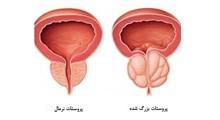 گزینه های خوراکی برای درمان بیماری پروستات