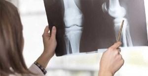 بیماری سرطان استخوان چیست و علائم آن چه می باشد؟