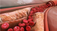 دانستنی های مهم راجع به کلسترول
