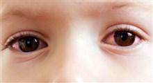عارضه چشم صورتی چیست؟