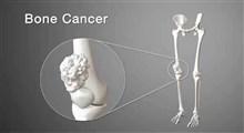 سرطان استخوان، نشانه ها، علل، تشخیص و درمان آن