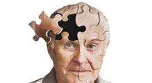با علائم اولیه آلزایمر آشنا شوید