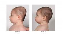 از علائم تا راهکارهای درمانی سندرم سر صاف در نوزادان