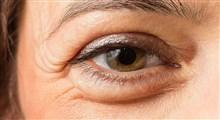 پف چشم و چگونگی درمان آن