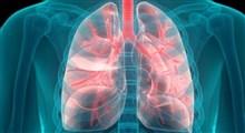 آشنایی با علائم سرطان ریه