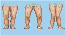 راشیتیسم یا نرمی استخوان چیست؟