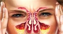 علائم و نشانههای عفونت سینوس