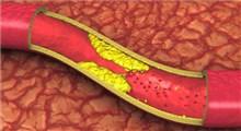 باورهای غلط درباره کلسترول خون