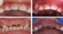 پوسیدگی دندان،علل،علائم و درمان