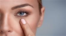 از علل تا درمان سیاهی زیر چشم