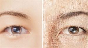 راهکارهایی برای درمان خشکی پوست
