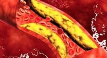 درمان بیماری چربی خون و چاقی
