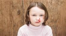 همه چیز راجع به خون دماغ شدن کودکان