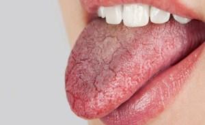 دلایل خشکی دهان چیست؟